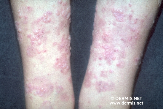 localisation: lower arms diagnosis: Dermatitis Herpetiformis Duhring