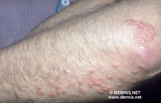 localisation: lower arms diagnosis: Xanthoma, Eruptive