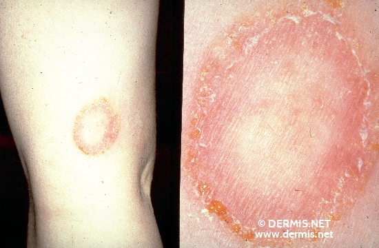 localisation: upper arms diagnosis: Tinea Corporis