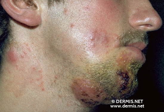localisation: mouth (skin) cheek neck diagnosis: Tinea Barbae Profunda