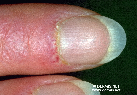 localisation: proximal nail fold of the finger diagnosis: Dermatomyositis