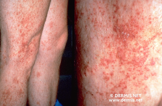 localisation: legs diagnosis: Purpura, Eczematid-like (Doucas-Kapetanakis)