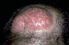 localisation: parietal scalp, diagnosis: Osteoma Cutis