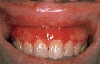 localisation: Gingiva, Diagnose: Gingivitis plasmacellularis