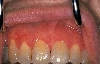 localisation: gingiva, diagnosis: Gingivitis Plasmacellularis