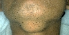 localisation: chin, diagnosis: Scrophuloderma
