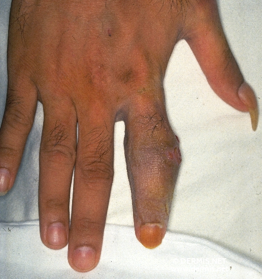 diagnosis: Scrophuloderma
