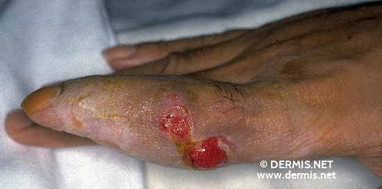 localisation: finger diagnosis: Scrophuloderma