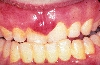 localisation: Gingiva, Diagnose: AIDS-related Complex, Kaposi-Sarkom