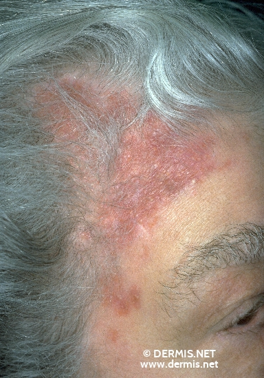 diagnosis: Lupus Vulgaris