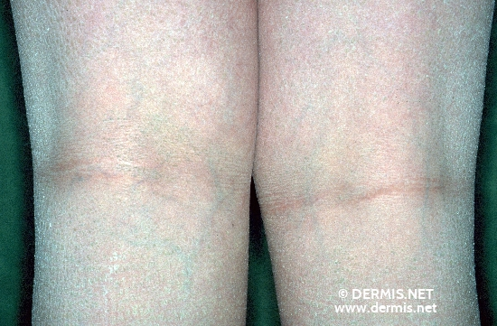localisation: hollow of the knee diagnosis: Hypogonadism, Hypogonadotropic Ichthyosis Congenita