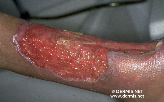 Diagnose: Pyoderma gangraenosum