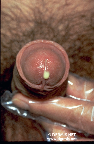 localisation: meatus of the urthra diagnosis: Gonorrhea, Acute
