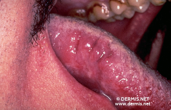 localisation: Zunge Diagnose: AIDS-related Complex Orale Haarleukoplakie