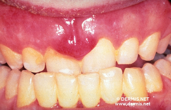 localisation: Gingiva Diagnose: AIDS-related Complex Kaposi-Sarkom