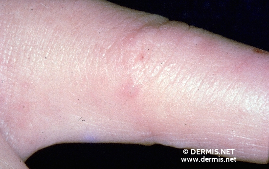 cellulitis of the finger #9