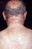 localisation: back of neck, diagnosis: Porphyria Cutanea Tarda