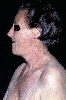 localisation: face, neck, decolleté, shoulder region, diagnosis: Porphyria Cutanea Tarda
