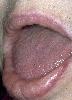 localisation: lips (skin), diagnosis: Amyloidosis