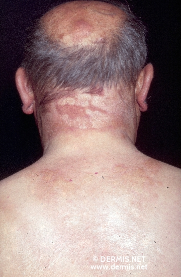 localisation: back of neck diagnosis: Porphyria Cutanea Tarda