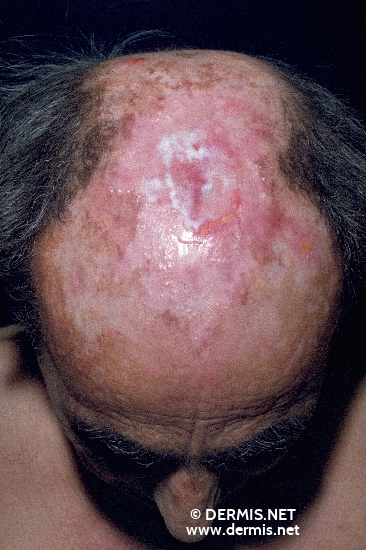 localisation: parietal scalp diagnosis: Porphyria Cutanea Tarda