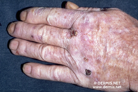 localisation: hands back of the hands finger diagnosis: Porphyria Cutanea Tarda