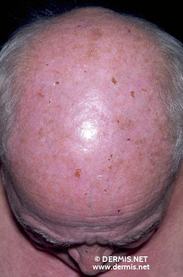 localisation: head scalp diagnosis: Porphyria Cutanea Tarda