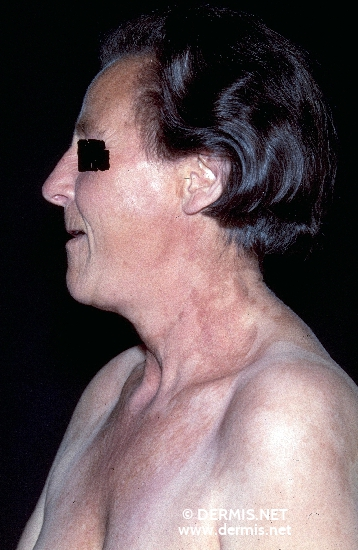 localisation: face neck decolleté shoulder region diagnosis: Porphyria Cutanea Tarda