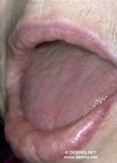 localisation: lips (skin) diagnosis: Amyloidosis