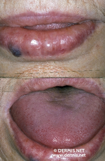 localisation: lips (skin) lower lip tongue diagnosis: Amyloidosis