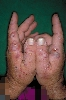 localisation: hands, diagnosis: Porphyria Cutanea Tarda