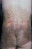 localisation: back, buttocks, diagnosis: Giant Melanocytic Nevus
