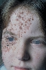 localisation: face, diagnosis: Nevocytic Nevus