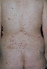 localisation: back, diagnosis: Neurofibromatosis Generalisata (von Recklinghausen)