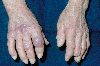 Lokalisation: Finger, Diagnose: Acrodermatitis chronica atrophicans Herxheimer