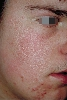 localisation: cheek, diagnosis: Atrophodermia Vermiculata