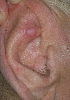 localisation: Anthelix, Diagnose: Chondrodermatitis nodularis chronica helicis