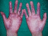 localisation: hands, palms, finger, diagnosis: Rothmund-Thomson Syndrome