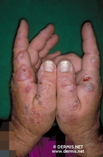 localisation: hands diagnosis: Porphyria Cutanea Tarda