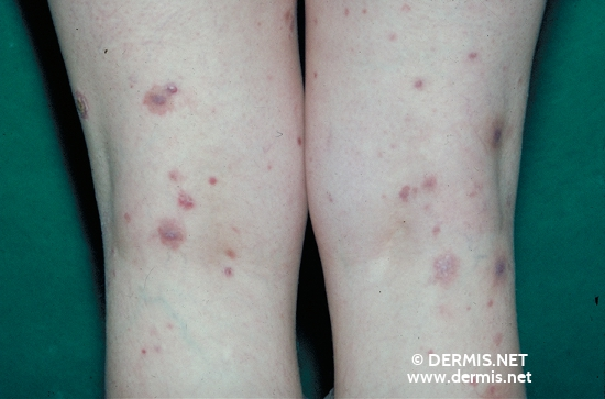 localisation: legs diagnosis: Pleomorphic T-Cell Lymphoma