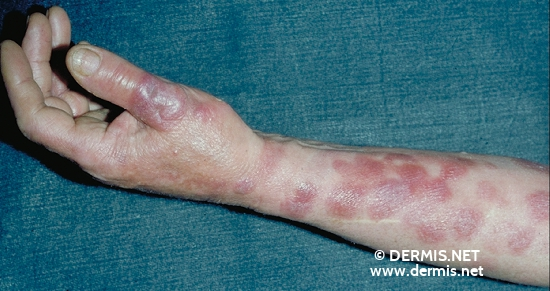 localisation: lower arms diagnosis: Mycosis Fungoides