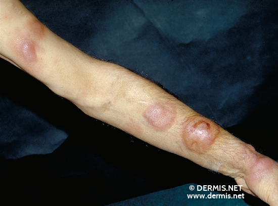localisation: arms diagnosis: Mycosis Fungoides