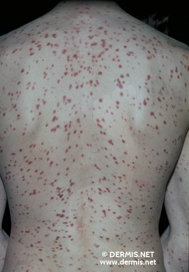 localisation: Rücken Diagnose: Urticaria pigmentosa