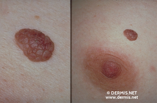localisation: chest diagnosis: Nevocytic Nevus