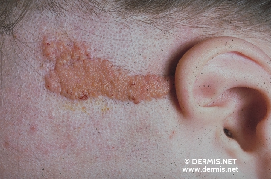 localisation: scalp diagnosis: Nevus Sebaceous of Jadassohn