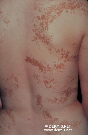 localisation: back diagnosis: Epidermal Nevus