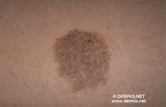 diagnosis: Nevocytic Nevus