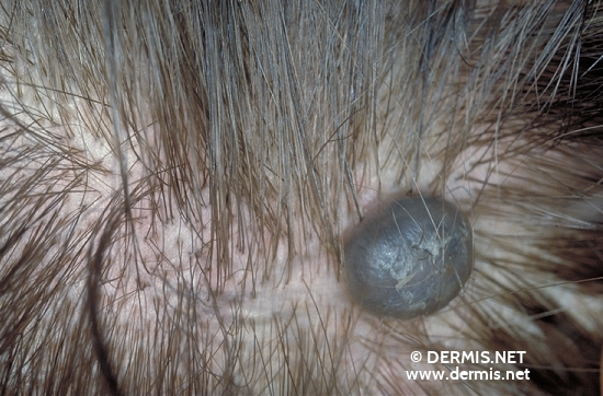 localisation: scalp diagnosis: Blue Nevus