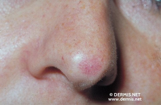 localisation: tip of the nose diagnosis: Spider Nevus