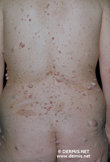 localisation: Rücken Diagnose: Neurofibromatosis generalisata (von Recklinghausen)